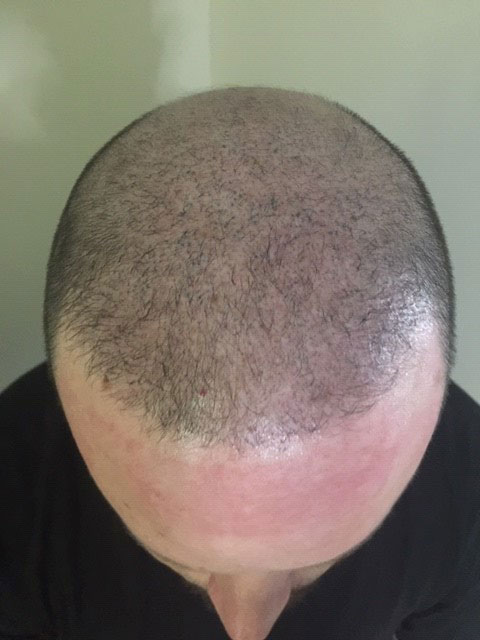 after Scalp Micro-Pigmentation