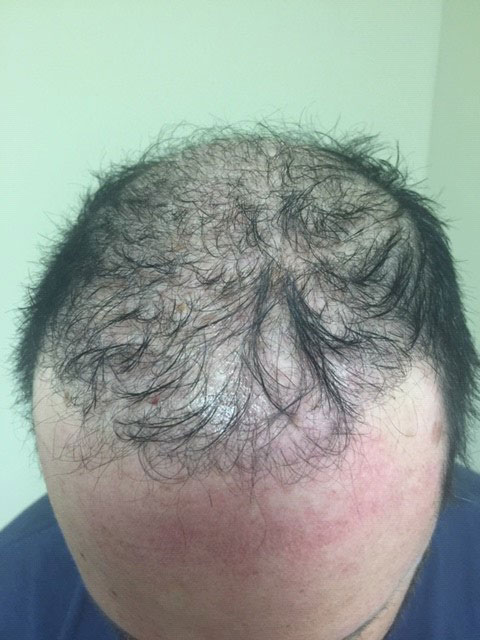 Scalp Micro-Pigmentation services in new jersey