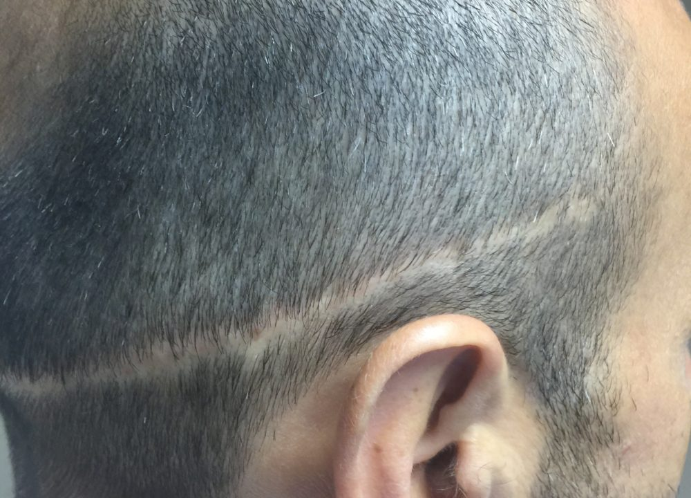 Before Fix The Problem Today Scalp Micropigmentation Is The Answe