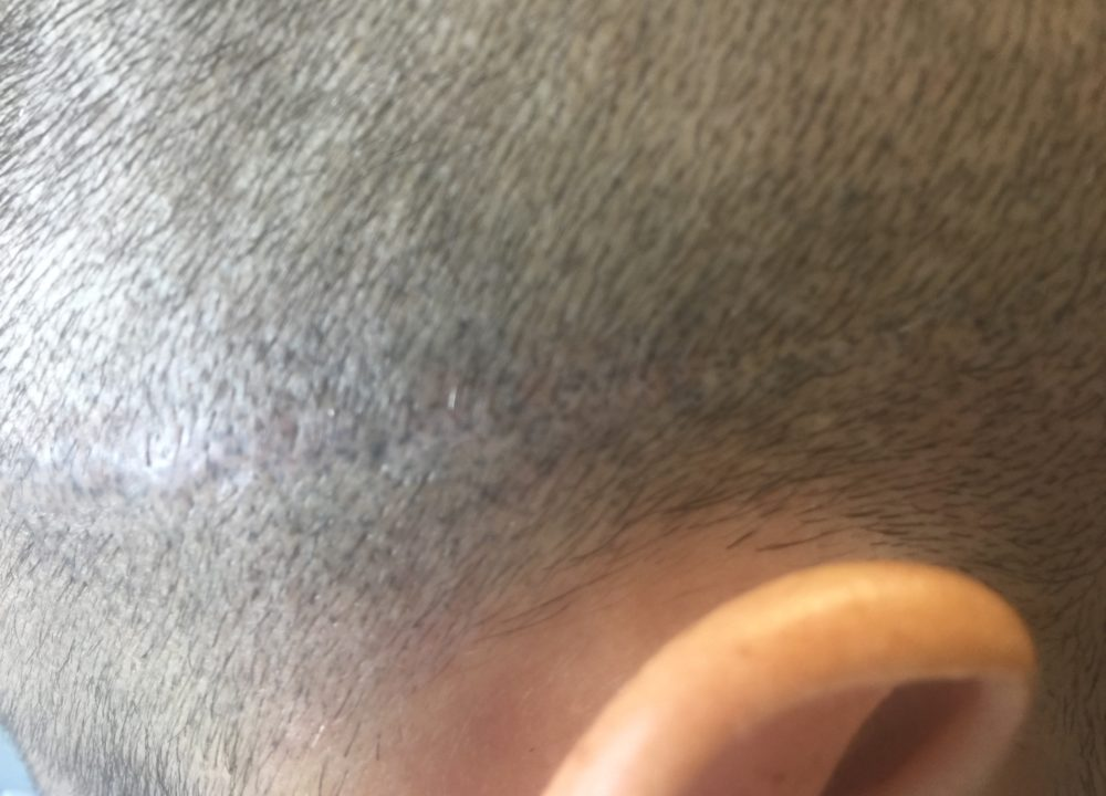 after Fix The Problem Today Scalp Micropigmentation