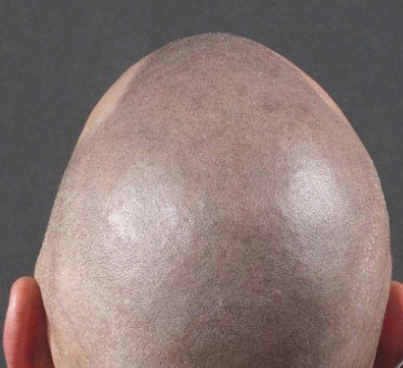 Before Micropigmentation results