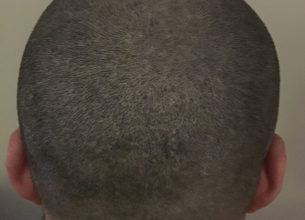 After Scar Camouflage for Hair